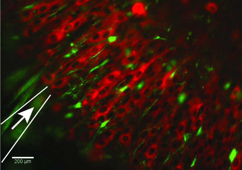 Correlated activity of neurons and astroglia cells can be monitored in the brain by genetic activity indicators, that response to increases intracellular Ca2+ levels. By rAAV-mediated gene transfer a red fluorescent genetic indicator was transferred to neurons and a green genetic indicator to astroglia cells. The simultaneous electrophysiological recording (position of the recording pipette is indicated by an arrow). Video taped time-laps recording of the green and red fluorescent reveal the correlation of glial and neuronal activity in acute brain slice of rAAV transduced mice.