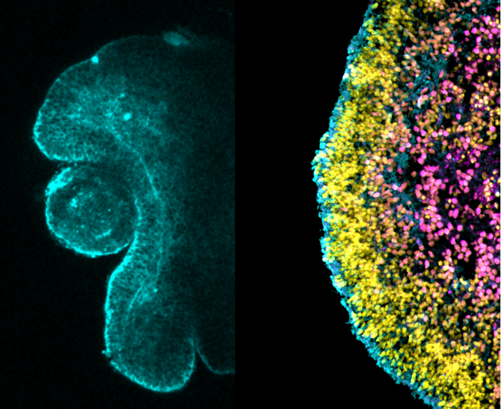 Synthetic Retina: Physical and chemical exploration of synthetic retina organoids.