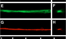 Double labelling of axons